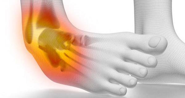 Acute ankle injuries