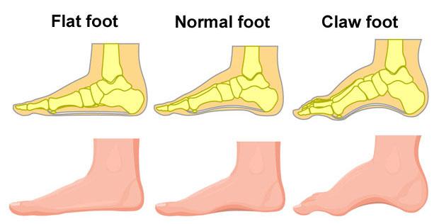 PTTD flat foot