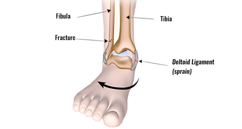 Eversion ankle sprain
