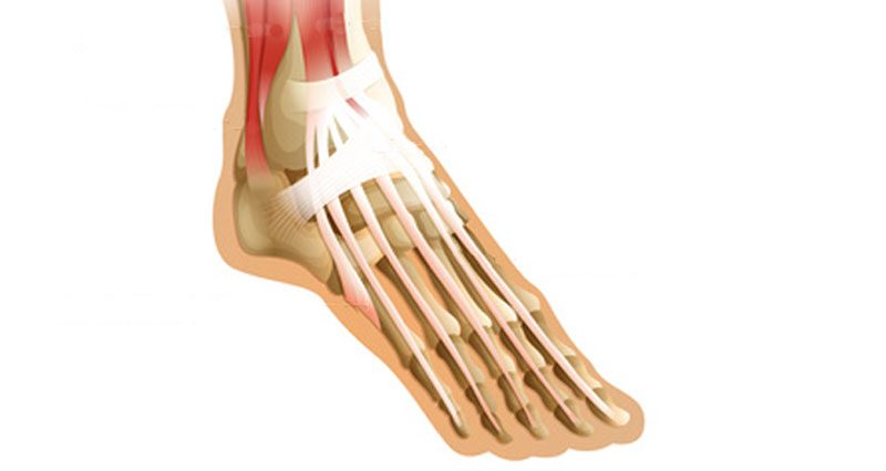 Extensor Tendonitis Tendinopathy Symptoms Causes And Treatment