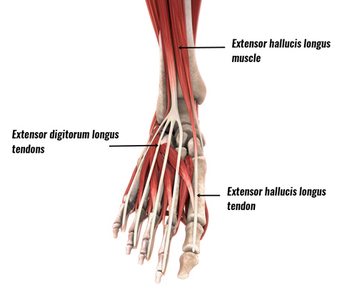 Extensor tendonitis - extensor muscles and tendons of the foot