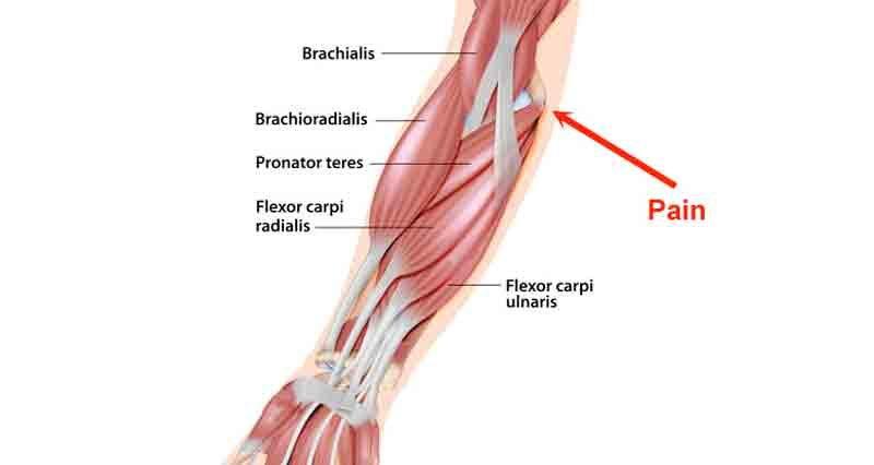 Golfers elbow anatomy