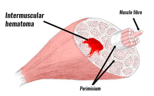 hematoma intramuscular hemorrhage