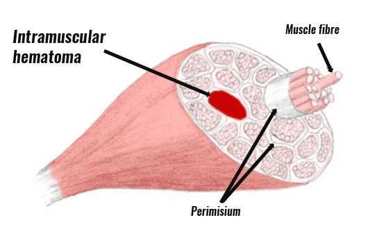Intramuscular hematoma