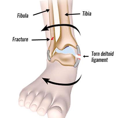 Medial ankle sprain - Eversion ankle sprain