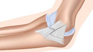 Medial elbow ligament sprain