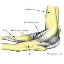 Medial Elbow Ligament Sprain
