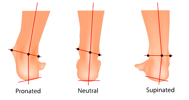 overpronation and supination of the foot