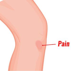 Pes anserine tendinopathy pain location