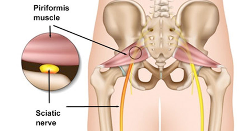 Piriformis syndrome in detail
