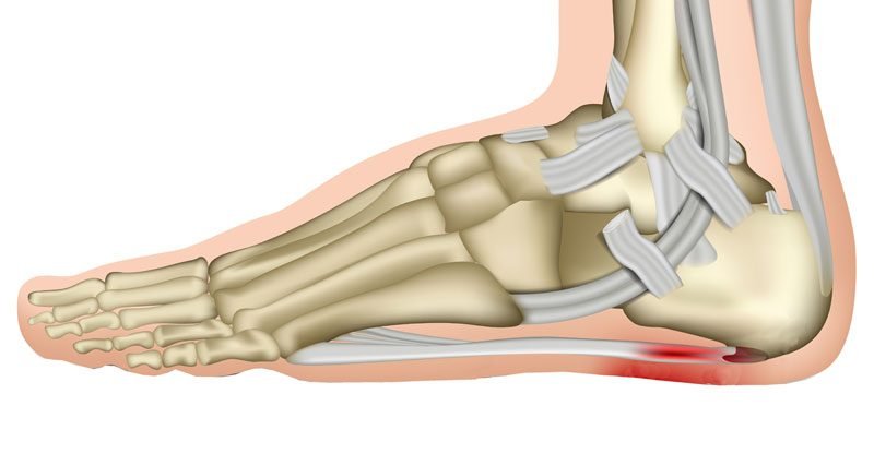 9a695e4e3e Plantar Fasciitis Heel Pain - Treatment & Rehabilitation