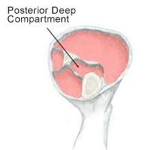 Posterior Compartment Syndrome