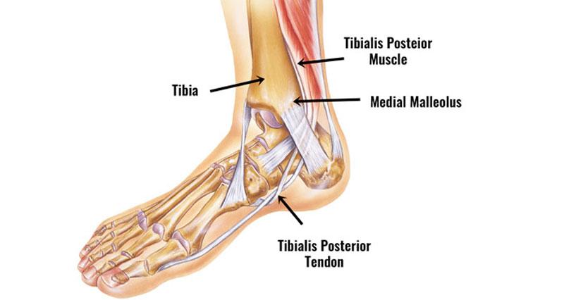 Posterior tibial tendon dysfunction / syndrome