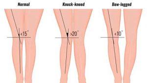 Q Angle & Knee Rehabilitation