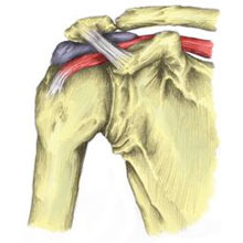 Subacromial Bursitis