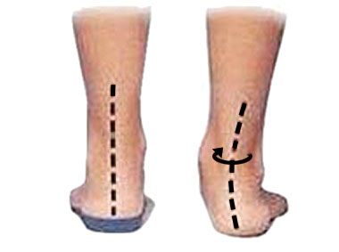 Overpronation and achilles twisting