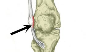Iliotibial band friction syndrome