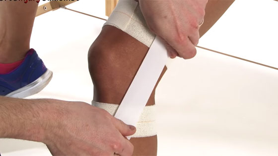 Lateral knee ligament sprain taping