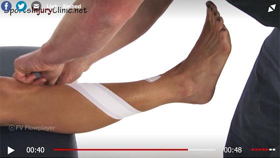 Anterior shin pain taping