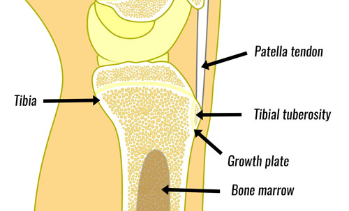Osgpood schlatter disease anatomy