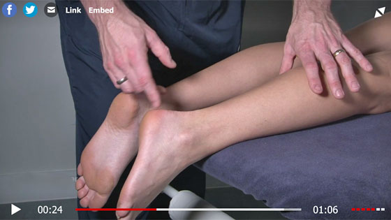 Thompsons test for ahilles tendon rupture