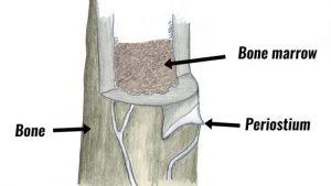 Periostial Contusion (Bone Bruise)