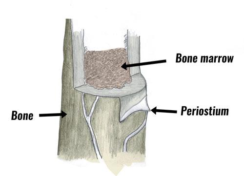 Shin splints periostium
