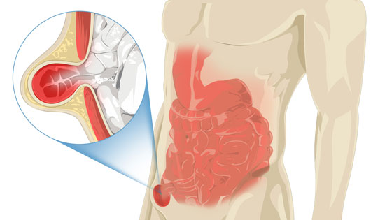 Hernia Explained: Symptoms, Types, Causes & Treatment