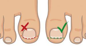 Prevent ingrowing toenails