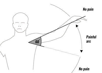 Shoulder impingement pain arc