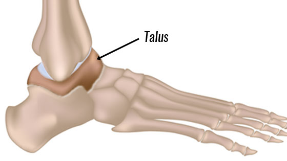 Osteochondral Lesions of the Talus