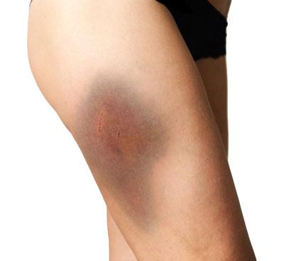 Thigh contusion bruising