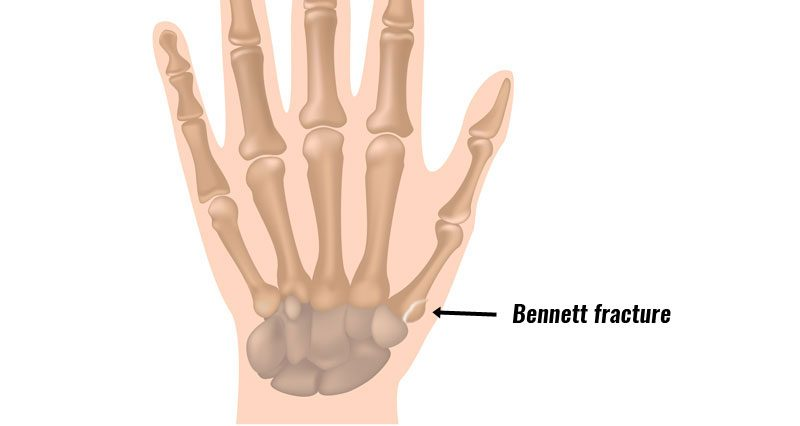 Bennett fracture