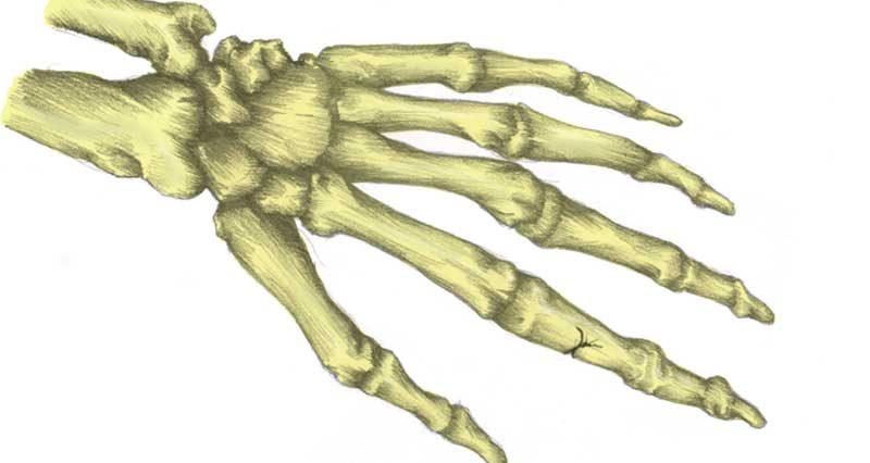Broken finger