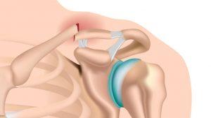 Broken collar bone cavicle fracture