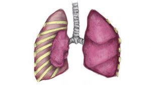 Collapsed lung