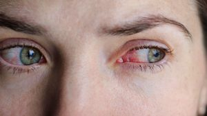 Conjunctivitis eye