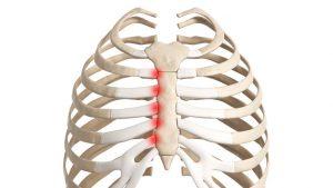 Costochondritis - Tietze's syndrome