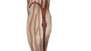 Deep vein thrombosis DVT