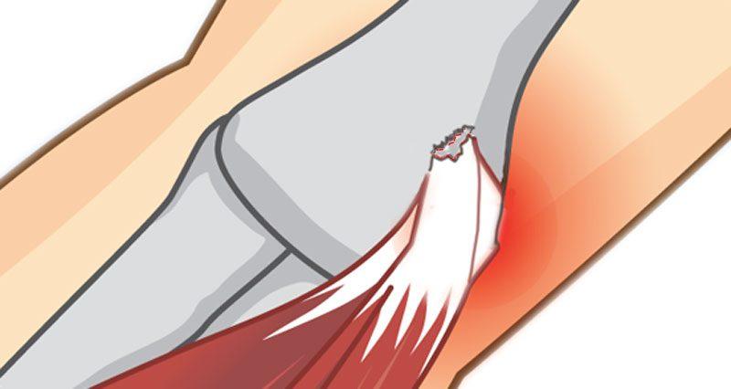 Elbow avulsion