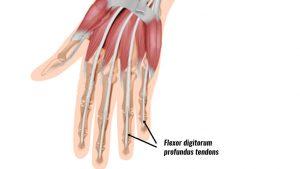 Jersey finger tendons