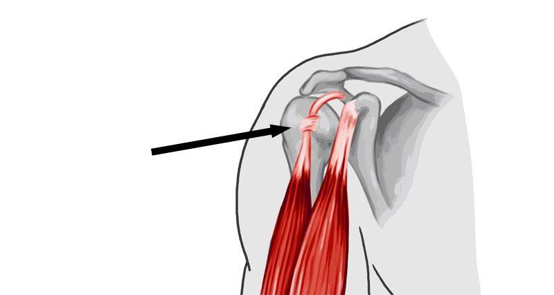 Long head of biceps