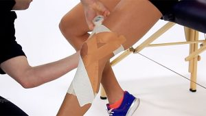 MCL knee taping