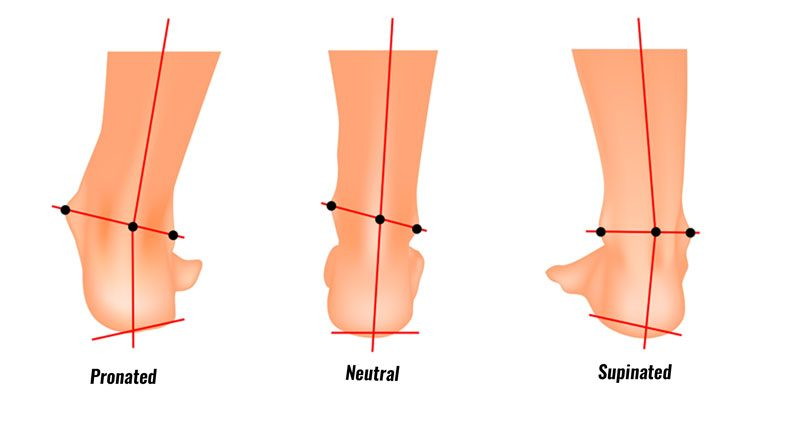 Overpronation and Supination