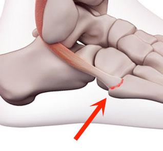 Peroneal tendon