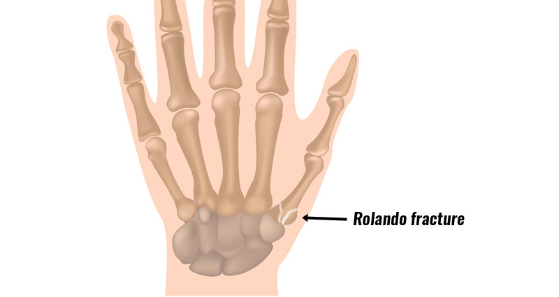 Rolando fracture