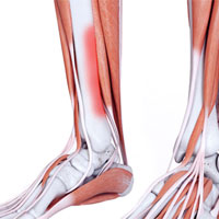 shin splints pain
