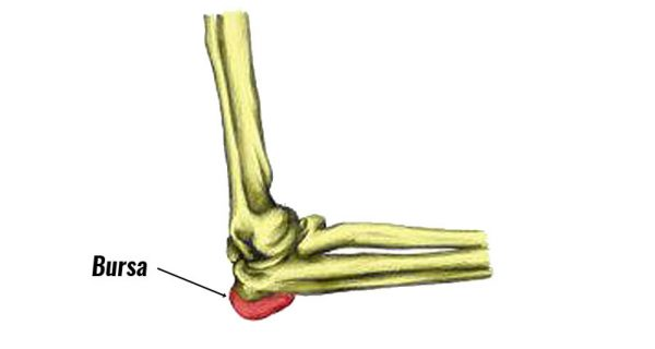 Students Elbow bursitis
