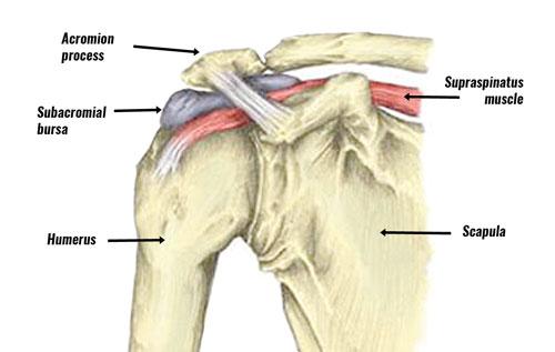 Subacromial bursitis anatomy