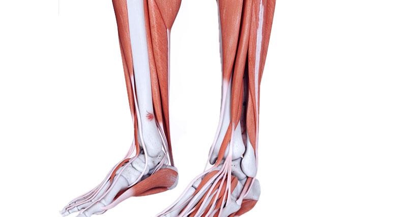 Tibial Stress Fracture Symptoms Causes Treatment Rehabilitation
